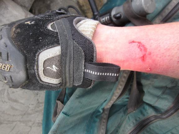 bike bark bite blood the perils of cycling in rabies