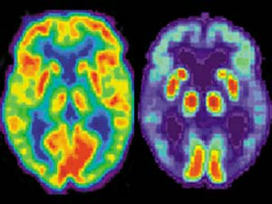 brain scans neuroimaging