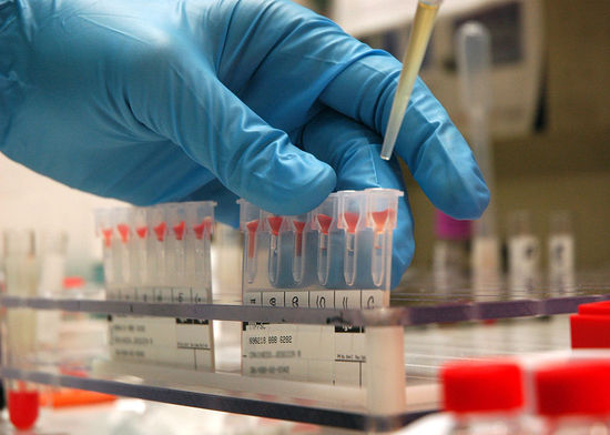 The Mystery of Human Blood Types | Science | Smithsonian